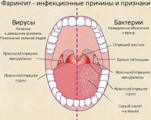 Признаки бактериального и вирусного воспаления горла