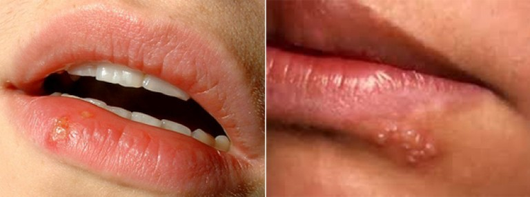 Герпес на губах, простуда на губах, лабиальный герпес фото