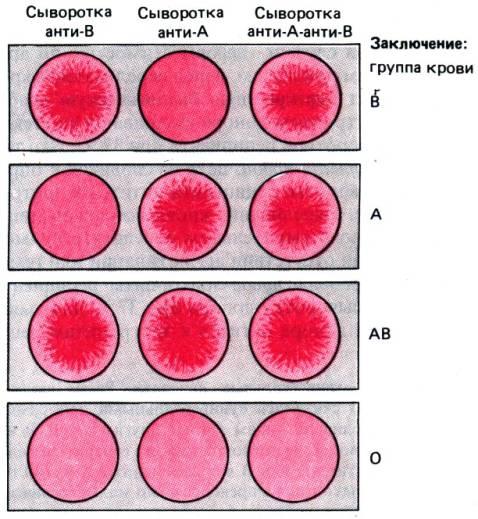 Анализ на группу крови