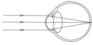 Процесс нормального преломления световых лучей в глазу
