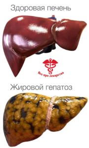 Здоровая печень и жировой гепатоз