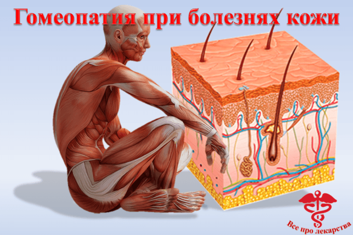 Гомеопатия при кожных заболевнаиях
