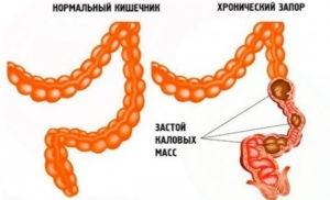 нормальный кишечник и кишечник при запоре