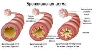 Состояние бронхов при бронхиальной астме
