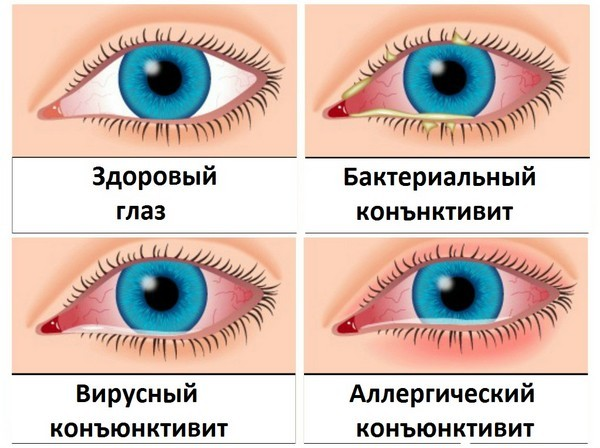 Разновидности конъюнктивита