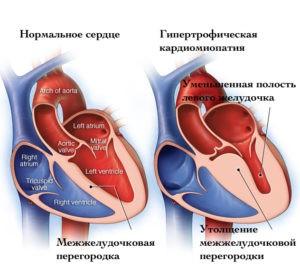 увеличение миокарда левого желудочка