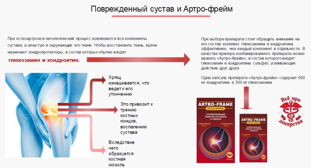 Повреждённый сустав и Артро-фрейм